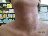 皮膚のトラブル 改善例 その1 前